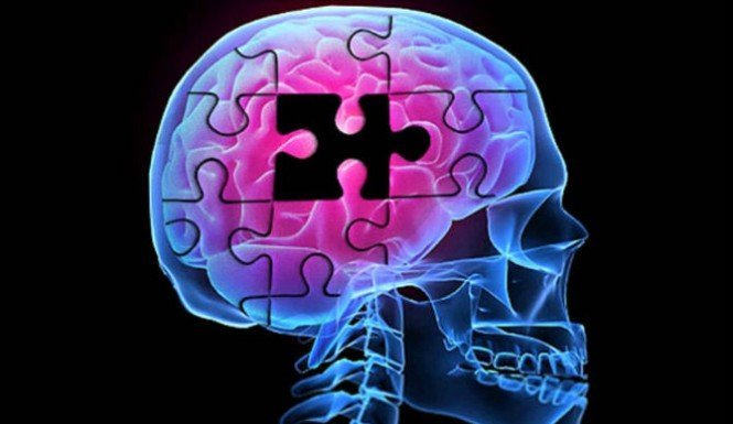 Cognimaxx-the missing piece to brain's maximum abilities